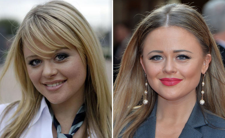 Emily Atack, then and now